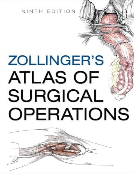 Zollinger atlas of surgical operations