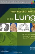 High-Resolution-CT-Lung-Richard-Webb