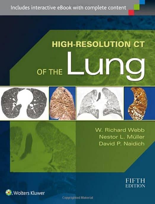 High-Resolution-CT-Lung-Richard-Webb