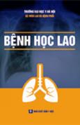 benh hoc lao