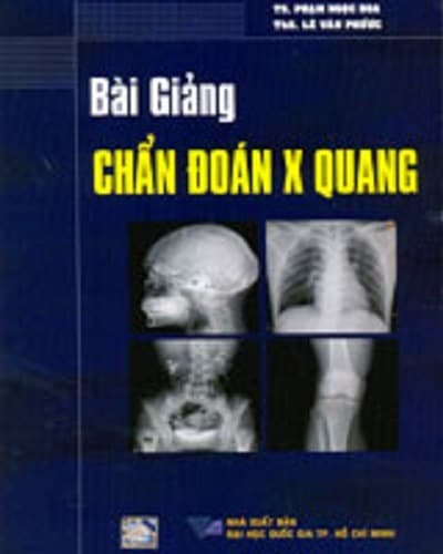 xquang