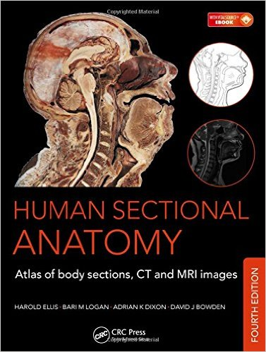 Human Sectional Anatomy Atlas of Body Sections, CT and MRI Images, 4e