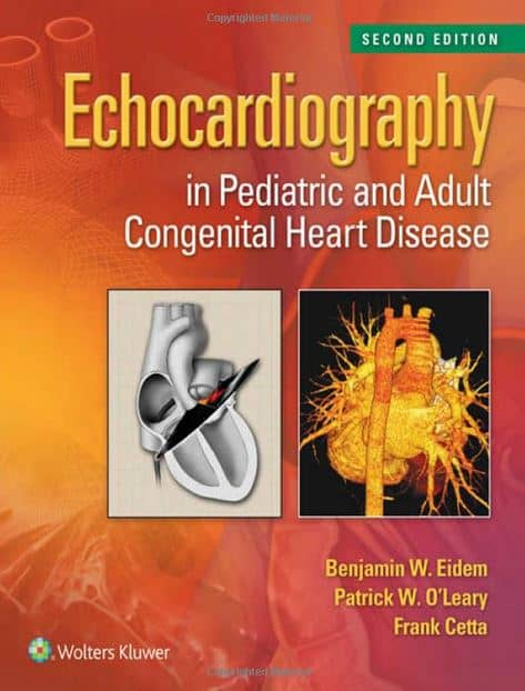 Echocardiography in Pediatric and Adult Congenital Heart Disease, 2e