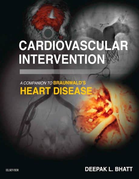 Cardiovascular Intervention A Companion to Braunwald's Heart Disease, 1e
