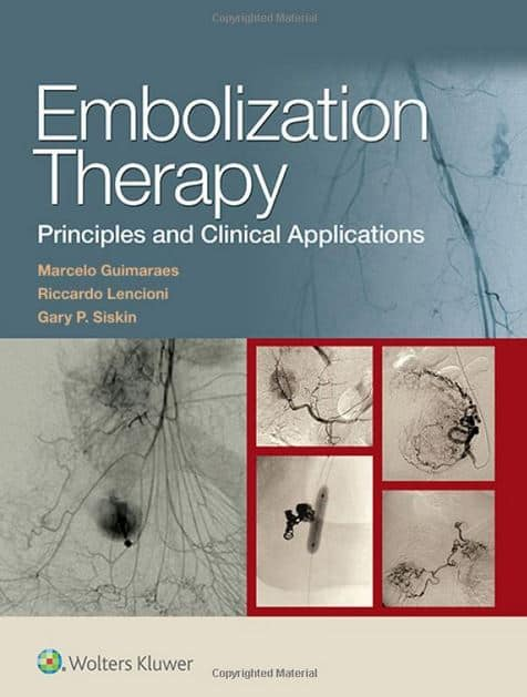 Embolization Therapy Principles and Clinical Applications
