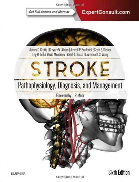 Stroke Pathophysiology, Diagnosis, and Management, 6e