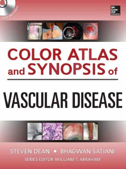 Color Atlas and Synopsis of Vascular Disease 1e