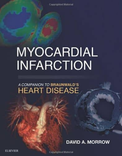 Myocardial Infarction A Companion to Braunwald's Heart Disease, 1e