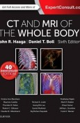 CT and MRI of the Whole Body, 2-Volume Set, 6e