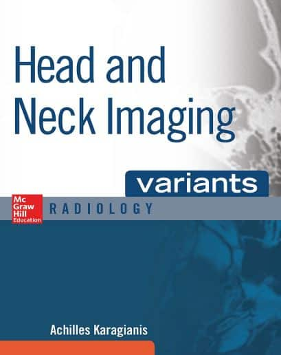 Head and Neck Imaging Variants 1e