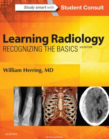 Learning Radiology - Recognizing the Basics, 3e