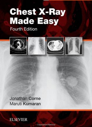 Chest X-Ray Made Easy, 4th Edition