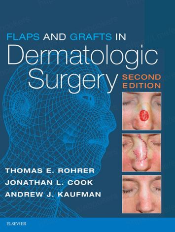 Flaps and Grafts in Dermatologic Surgery 2e